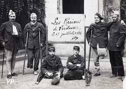 Amputés à hôpital de Moulins